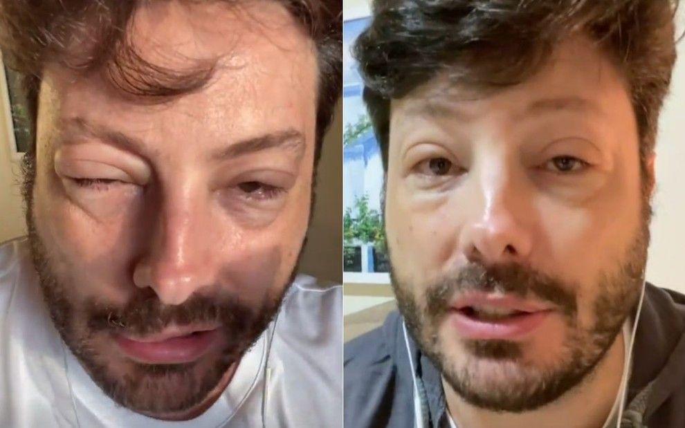"""Alérgico a medicamento, Danilo Gentili tem choque anafilático: """"momentos tensos"""" - Reprodução/Instagram"""