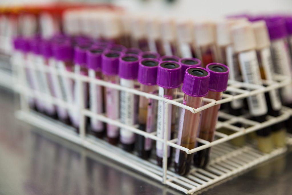 Conheça e entenda melhor sobre os exames de sangue relacionados a covid-19: estou melhorando ou piorando? -